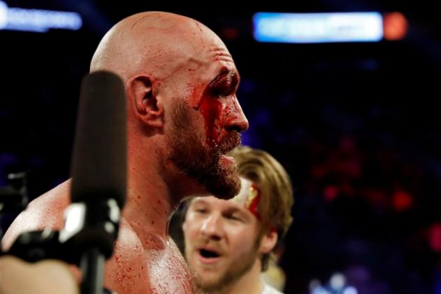 Tyson Fury po zápase s Otto Wallinem / zdroj foto: Boxingscene.com
