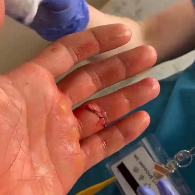 Plijev má prst zpět